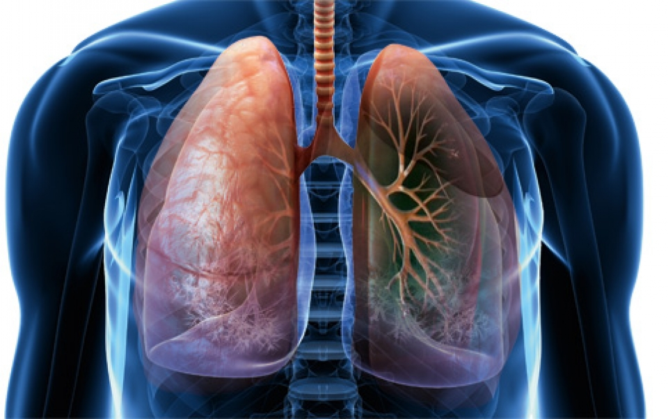 Doença Pulmonar Obstrutiva Crônica -DPOC