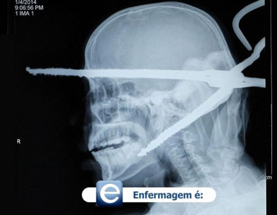 Homem sobrevive apóss tesoura perfurar toda sua cabeça