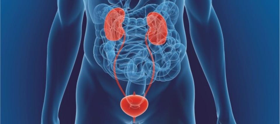 Eliminação de Cálculo renal sem cirurgia