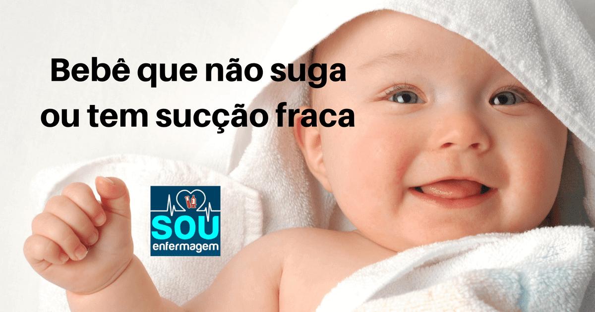 Bebê que não suga ou tem sucção fraca