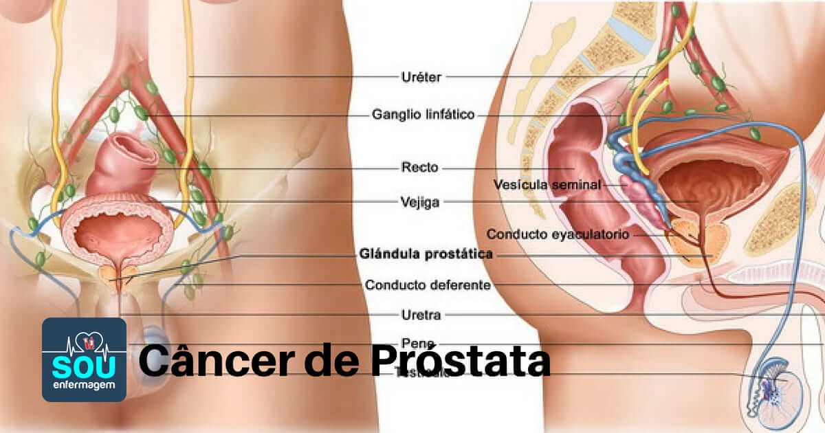cancer de prostata estatística