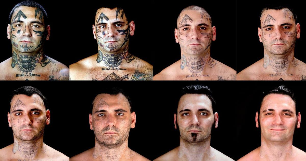 Doloroso tratamento a laser para apagar as tatuagens