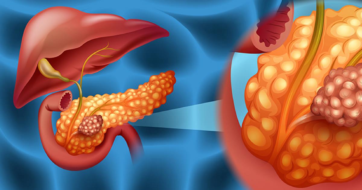 Novo tratamento  elimina câncer do pâncreas em seis dias