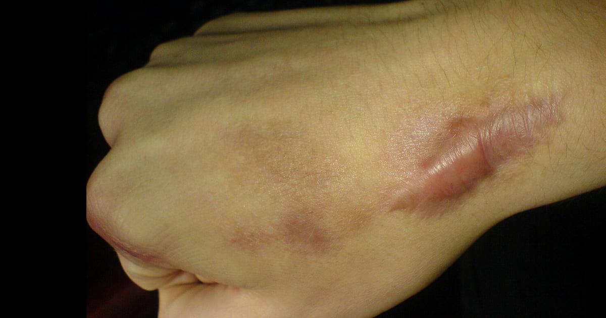 Queloide ou cicatriz hipertrófica?