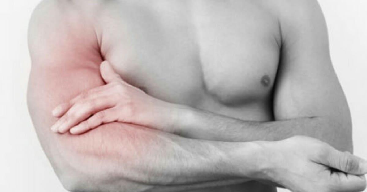 Dor Muscular Após Exercício