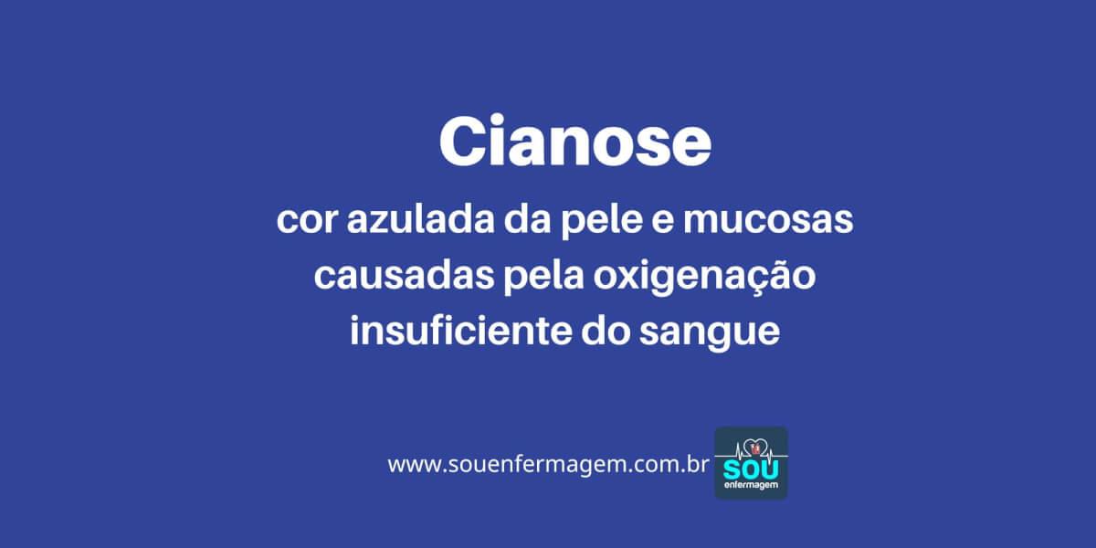 Cianose