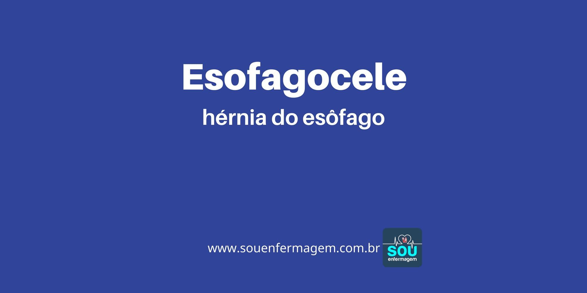 Esofagocele