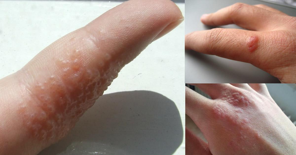 A disidrose é uma dermatite de causa desconhecida