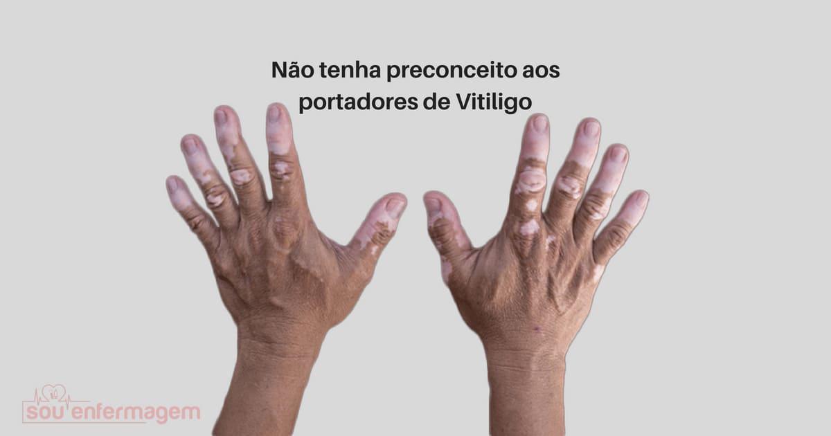 Não tenha preconceito aos portadores de Vitiligo
