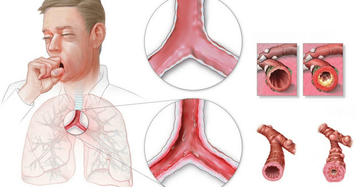 Doença Pulmonar Obstrutiva Crônica - DPOC