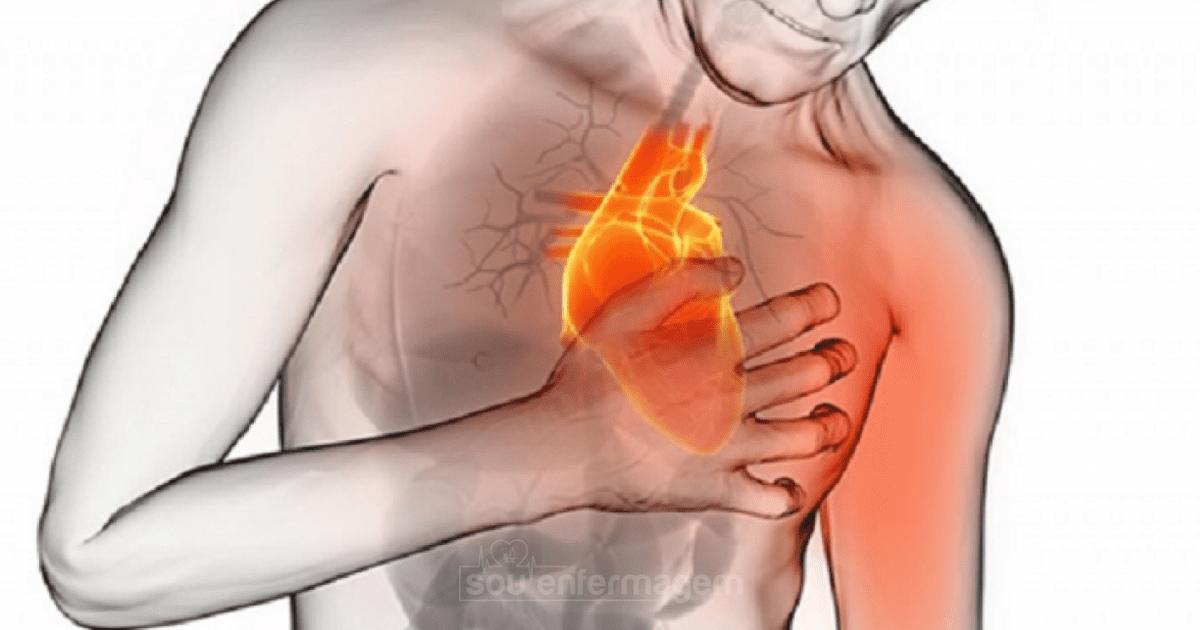 Sintomas do Infarto Agudo do Miocárdio - IAM