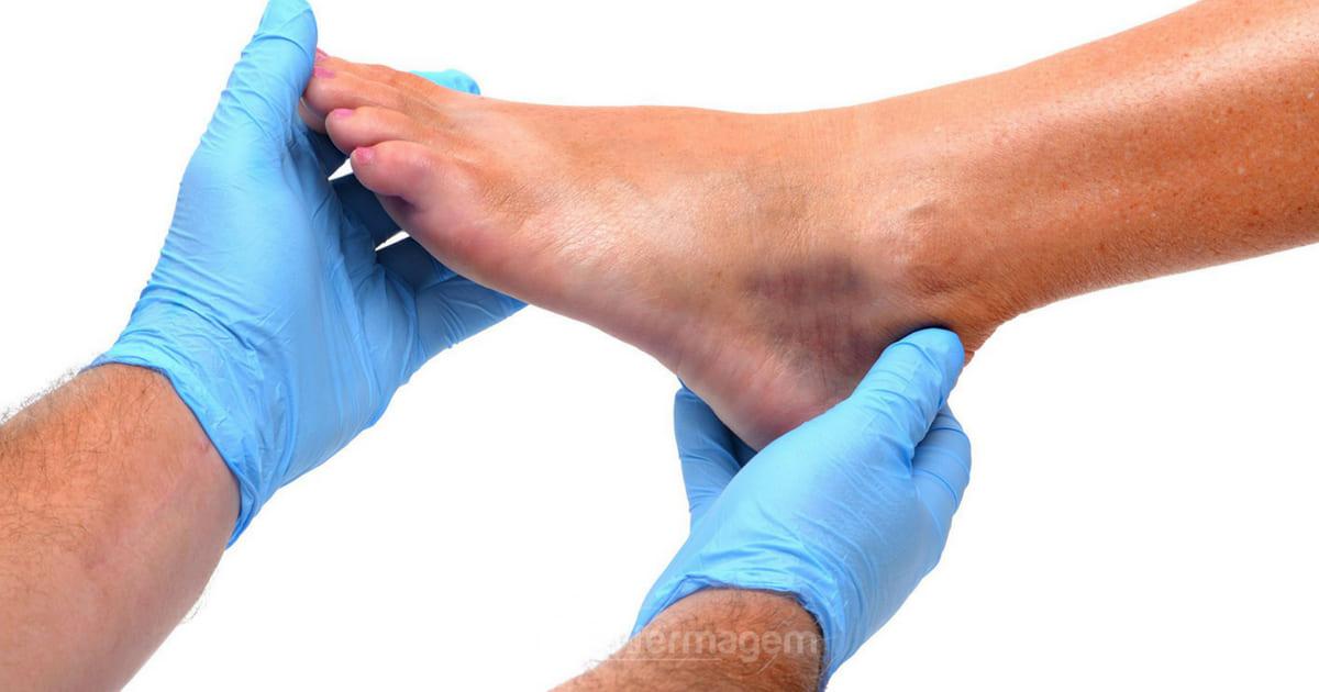 Dores nos pés pode ser fascite plantar