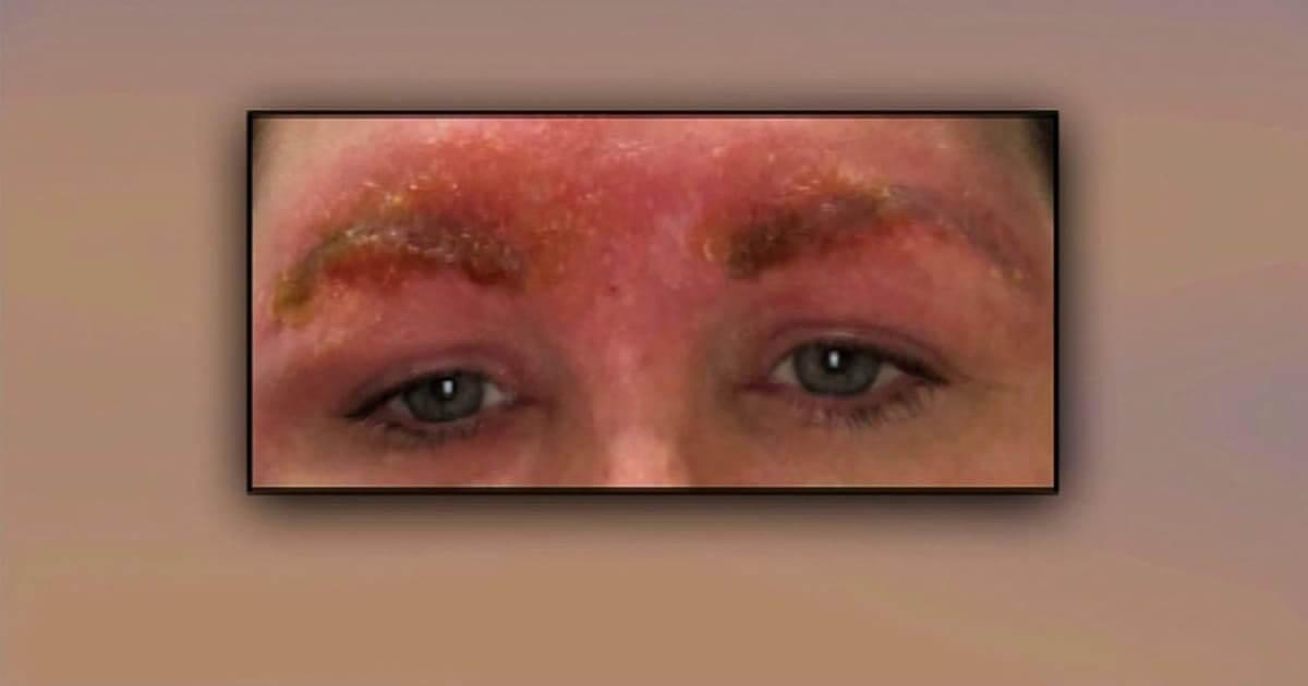 Depois de uma infecção na sobrancelha mulher quase morre