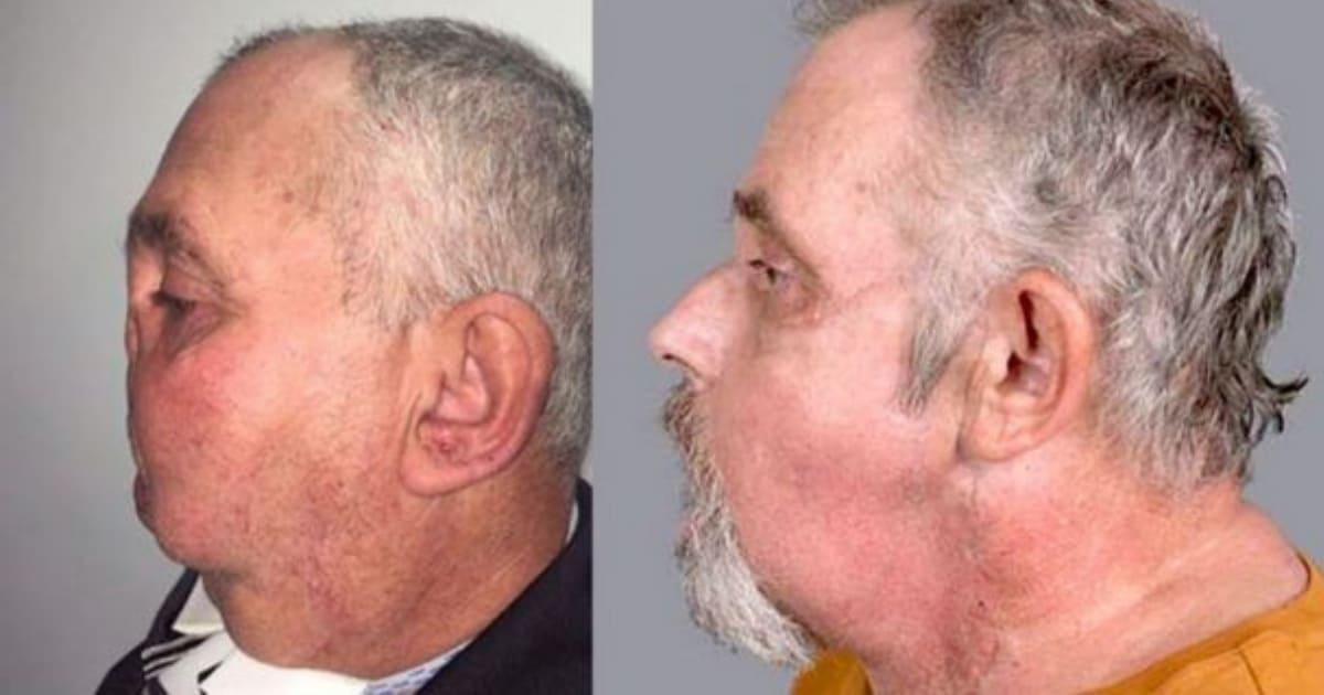 transplante-de-face (1) (1).jpg