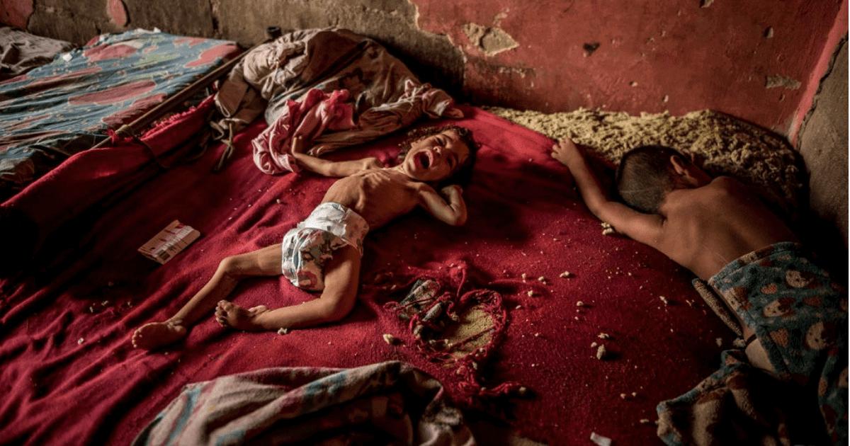 Enfermeira da Venezuela salva bebê da fome