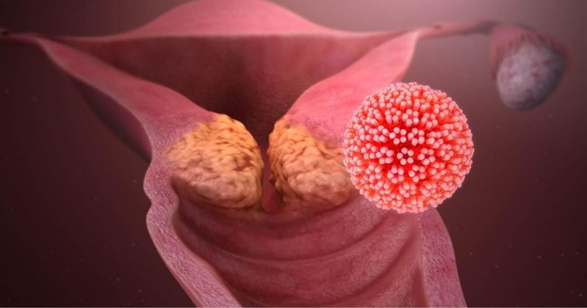 Existem mais de 150 tipos de Papilomavírus Humano (HPV)