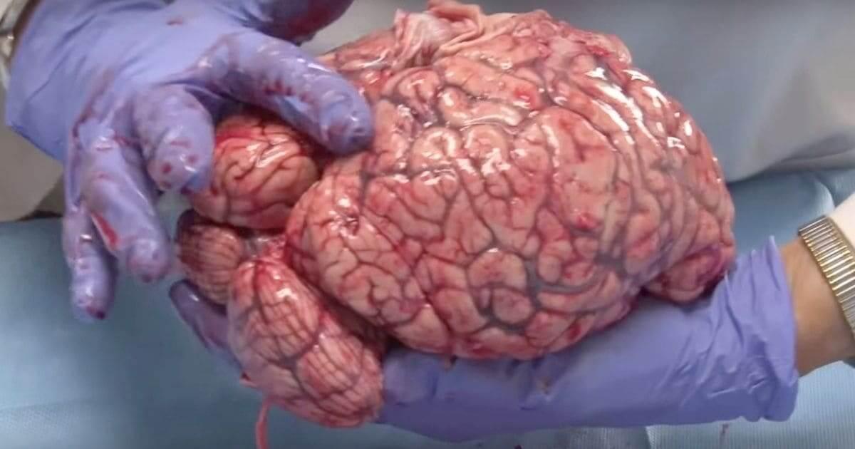 Ameba que come cérebro pode ser encontrada no Brasil