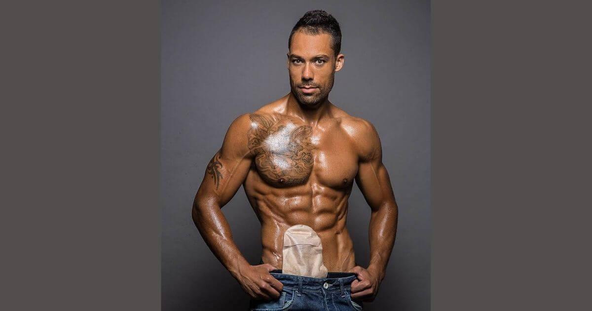 Fisiculturista se apresenta com bolsa de colostomia e surpreende